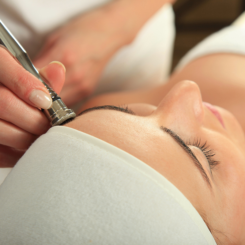 Microdermabrasion Treatment Vitality Medi Spa Halifax NS
