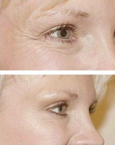 Wrinkle treatment Vitality Medi-Spa Halifax NS