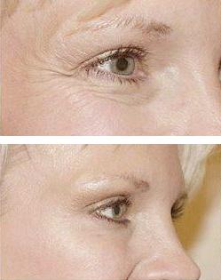 Wrinkle treatment Vitality Medi-Spa Halifax NS