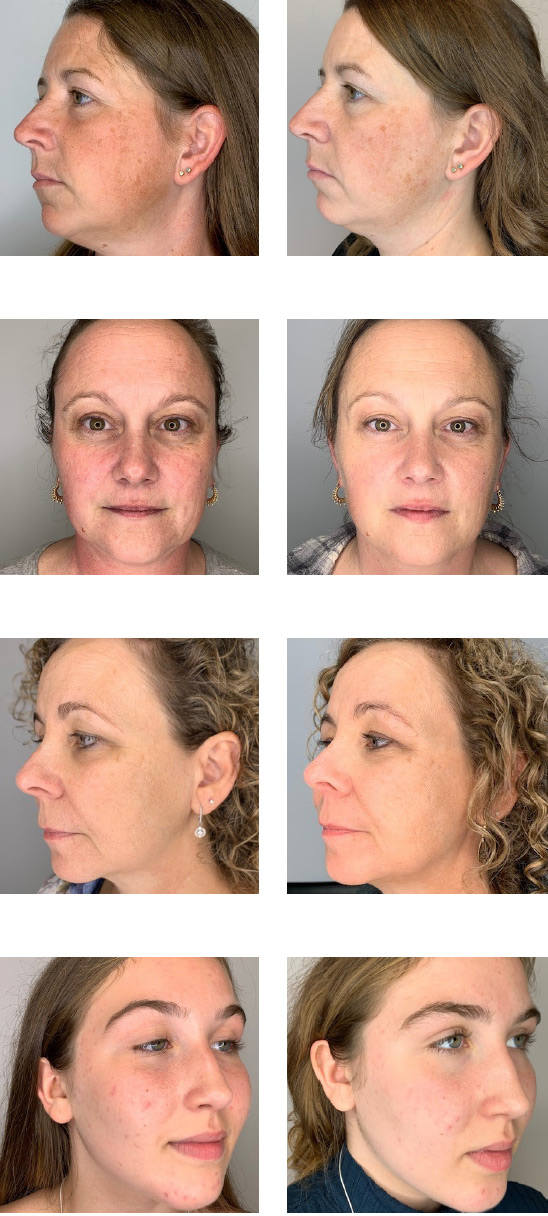bela-serum-before-after